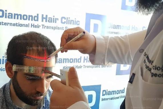 Diamond Hair Clinic